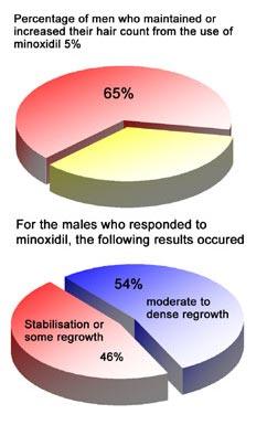 Diagram showing response to Minoxidil
