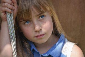 Alopecia in Children